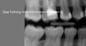 Djup fyllning i tand