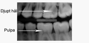 tandvärk efter lagning hur länge