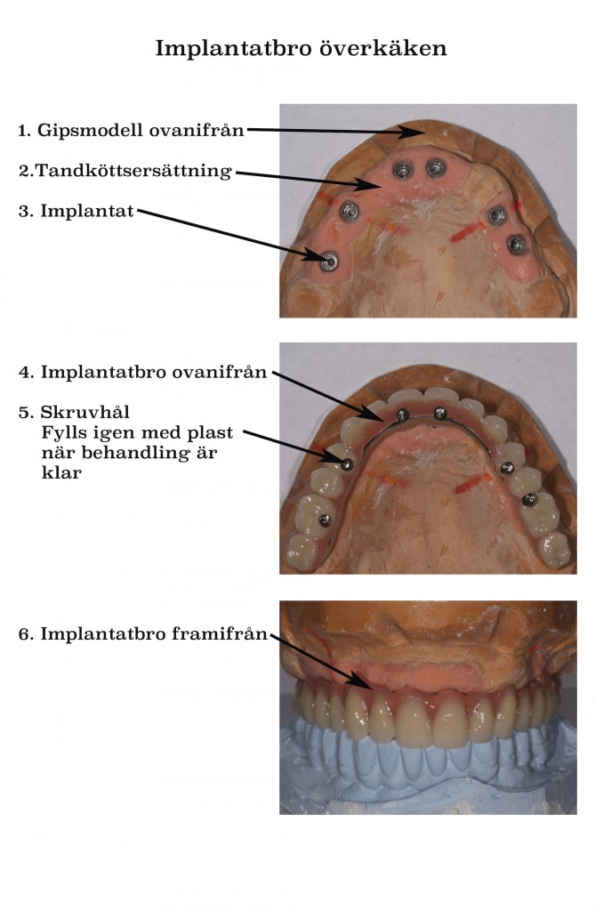 implantatbro