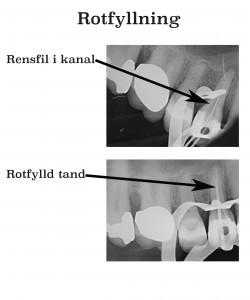Rotfyllning kanal och tand