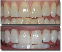 vita tänder hemma bakpulver